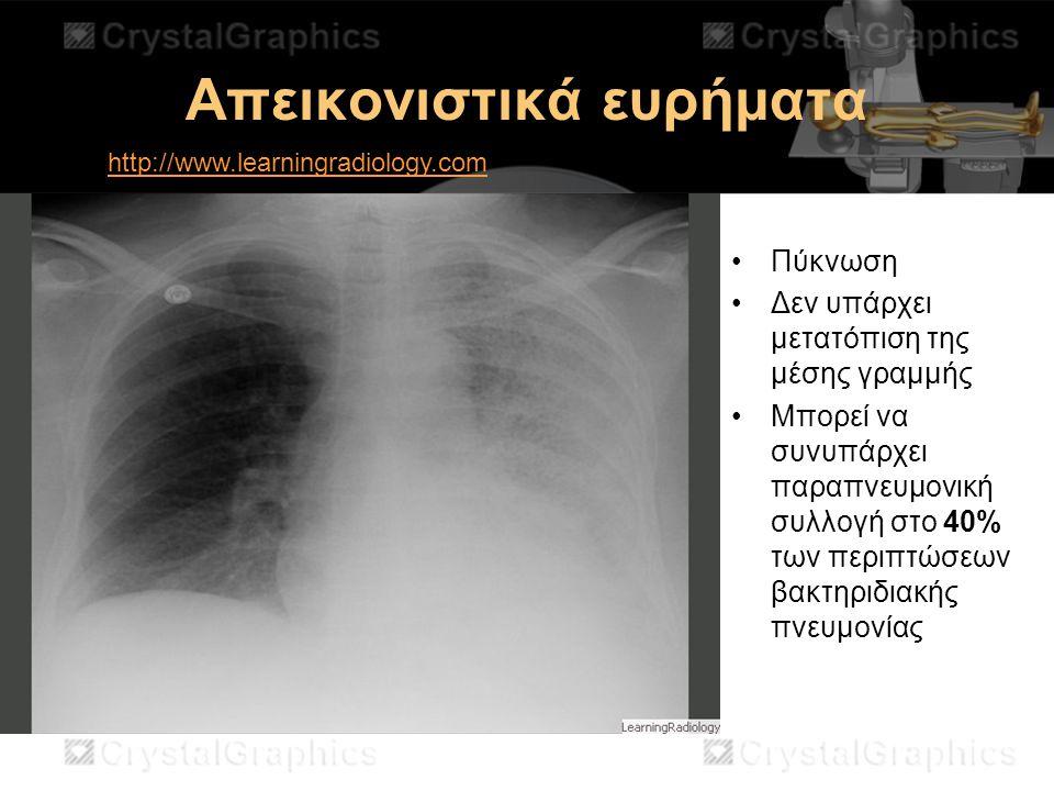Απεικονιστικά ευρήματα Πύκνωση Δεν υπάρχει μετατόπιση της μέσης γραμμής Μπορεί να συνυπάρχει παραπνευμονική συλλογή στο 40% των περιπτώσεων βακτηριδια