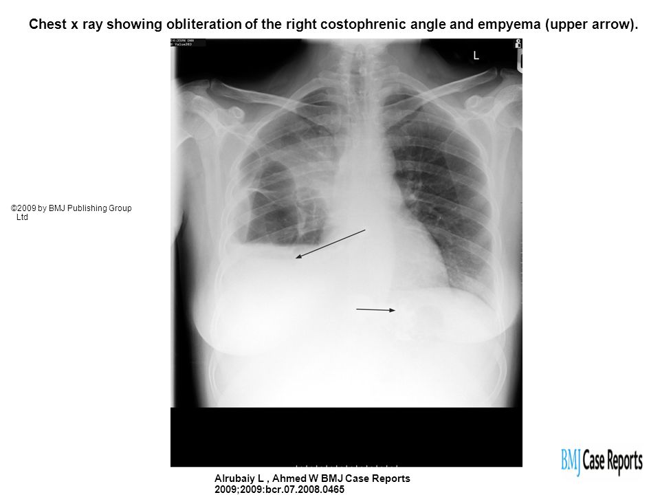 Chest x ray showing obliteration of the right costophrenic angle and empyema (upper arrow). Alrubaiy L, Ahmed W BMJ Case Reports 2009;2009:bcr.07.2008