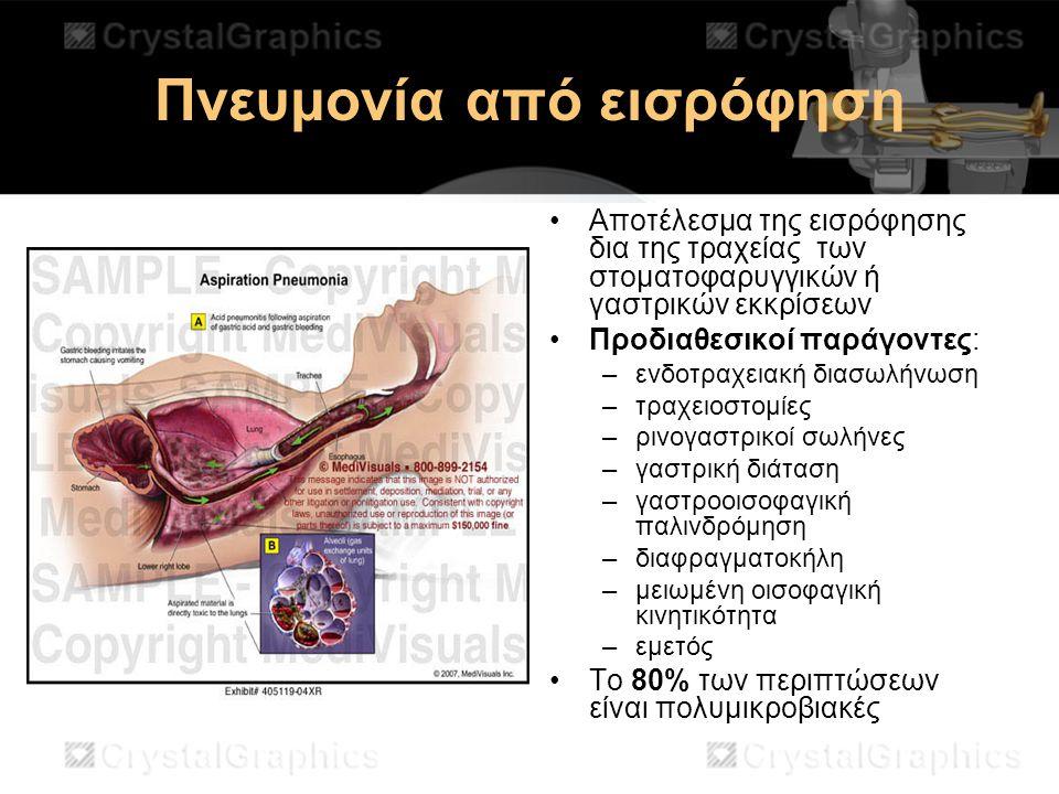 Πνευμονία από εισρόφηση Αποτέλεσμα της εισρόφησης δια της τραχείας των στοματοφαρυγγικών ή γαστρικών εκκρίσεων Προδιαθεσικοί παράγοντες: –ενδοτραχειακ