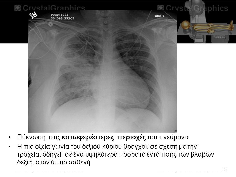 Πύκνωση στις κατωφερέστερες περιοχές του πνεύμονα Η πιο οξεία γωνία του δεξιού κύριου βρόγχου σε σχέση με την τραχεία, οδηγεί σε ένα υψηλότερο ποσοστό