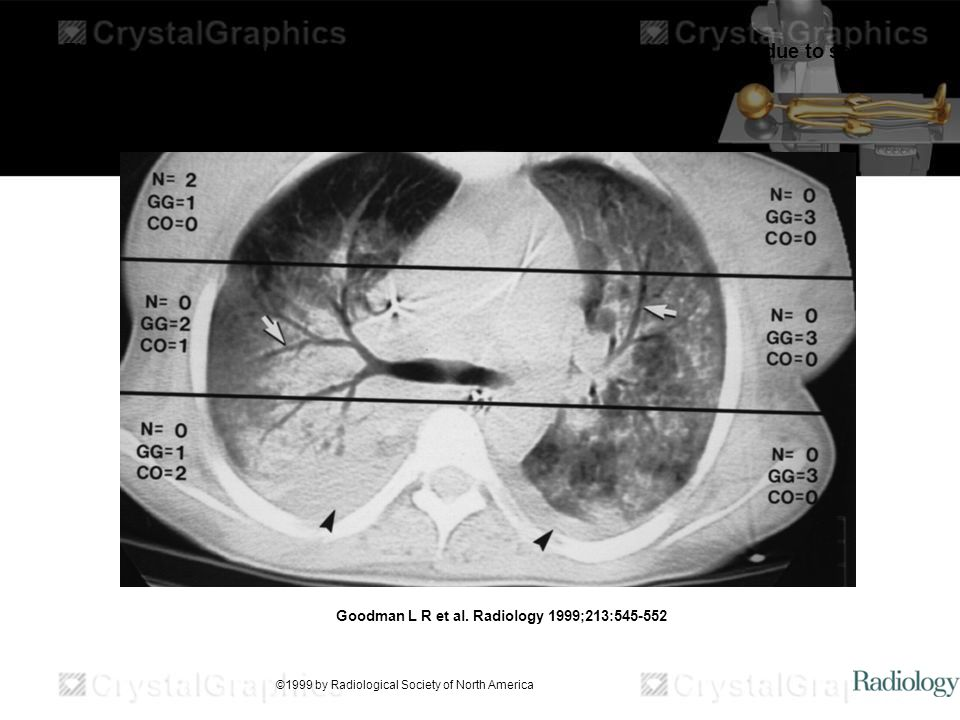 Thorax grading system at CT in a 23-year-old woman who had ARDS EXP due to sepsis. Goodman L R et al. Radiology 1999;213:545-552 ©1999 by Radiological