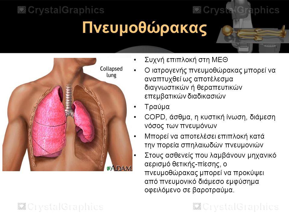 Πνευμοθώρακας Συχνή επιπλοκή στη ΜΕΘ Ο ιατρογενής πνευμοθώρακας μπορεί να αναπτυχθεί ως αποτέλεσμα διαγνωστικών ή θεραπευτικών επεμβατικών διαδικασιών