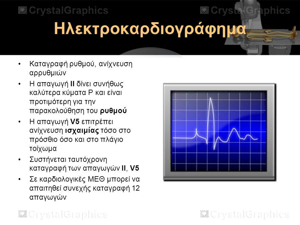 Ηλεκτροκαρδιογράφημα Καταγραφή ρυθμού, ανίχνευση αρρυθμιών H απαγωγή ΙΙ δίνει συνήθως καλύτερα κύματα Ρ και είναι προτιμότερη για την παρακολούθηση το