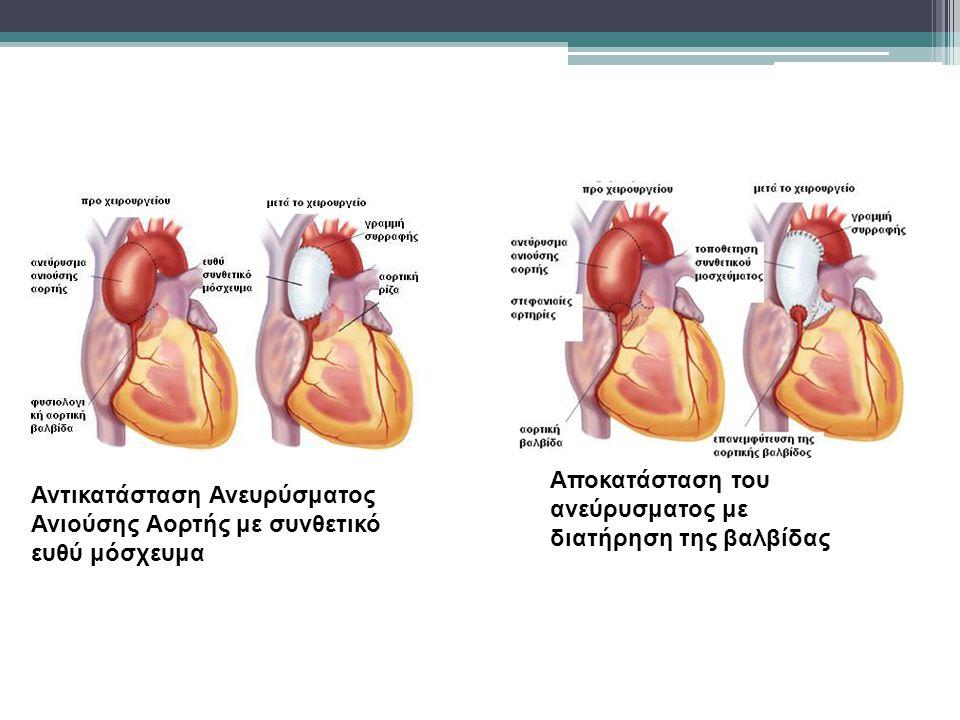 Αποκατάσταση του ανεύρυσματος με διατήρηση της βαλβίδας Αντικατάσταση Ανευρύσματος Ανιούσης Αορτής με συνθετικό ευθύ μόσχευμα