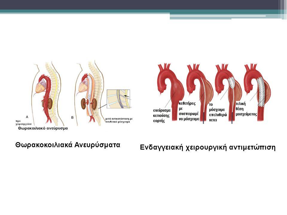 Θωρακοκοιλιακά Ανευρύσματα Ενδαγγειακή χειρουργική αντιμετώπιση
