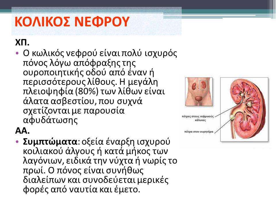 ΚΟΛΙΚΟΣ ΝΕΦΡΟΥ ΧΠ. Ο κωλικός νεφρού είναι πολύ ισχυρός πόνος λόγω απόφραξης της ουροποιητικής οδού από έναν ή περισσότερους λίθους. Η μεγάλη πλειοψηφί