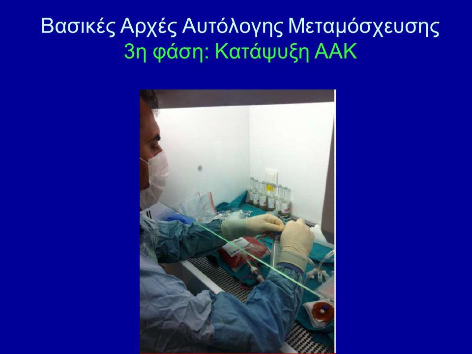 Βασικές Αρχές Αυτόλογης Μεταμόσχευσης 3η φάση: Κατάψυξη ΑΑΚ