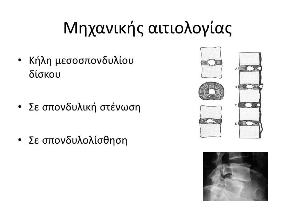 Μηχανικής αιτιολογίας Κήλη μεσοσπονδυλίου δίσκου Σε σπονδυλική στένωση Σε σπονδυλολίσθηση