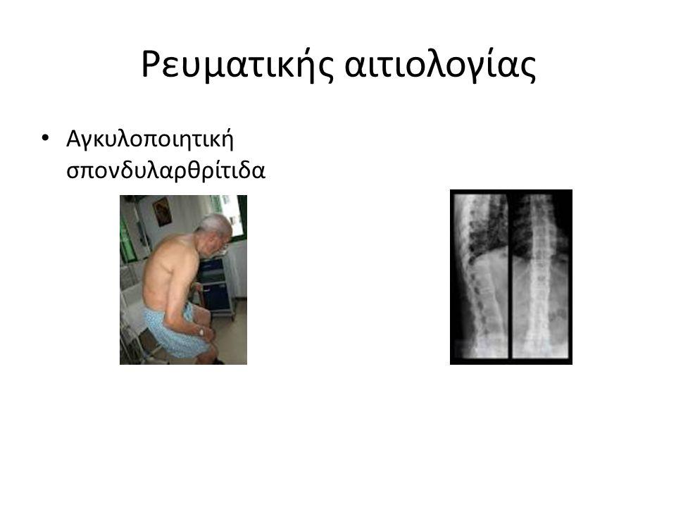 Ρευματικής αιτιολογίας Αγκυλοποιητική σπονδυλαρθρίτιδα