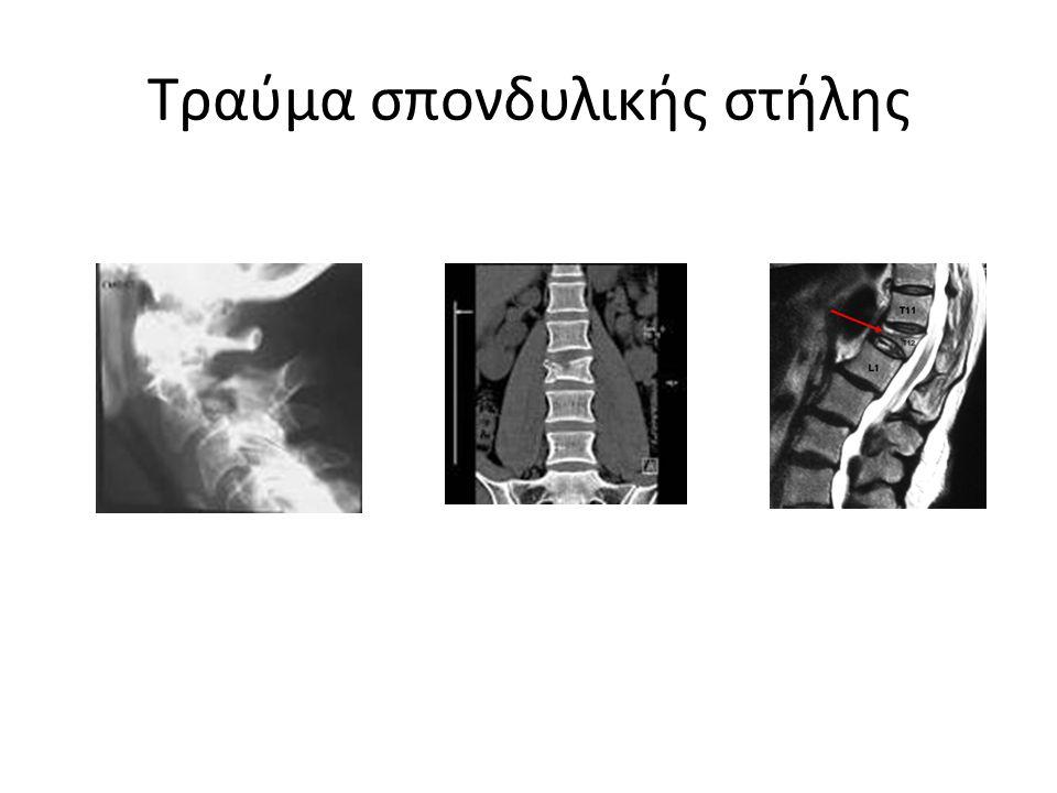 Τραύμα σπονδυλικής στήλης