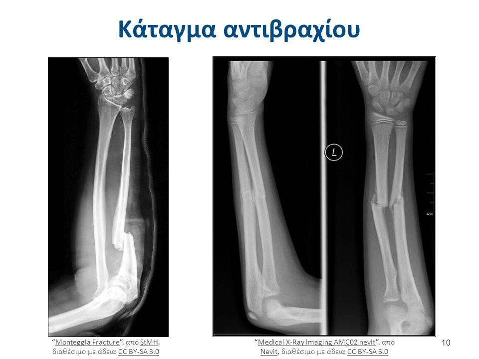 """Κάταγμα αντιβραχίου """"Monteggia Fracture"""", από StMH, διαθέσιμο με άδεια CC BY-SA 3.0Monteggia FractureStMHCC BY-SA 3.0 """"Medical X-Ray imaging AMC02 nev"""