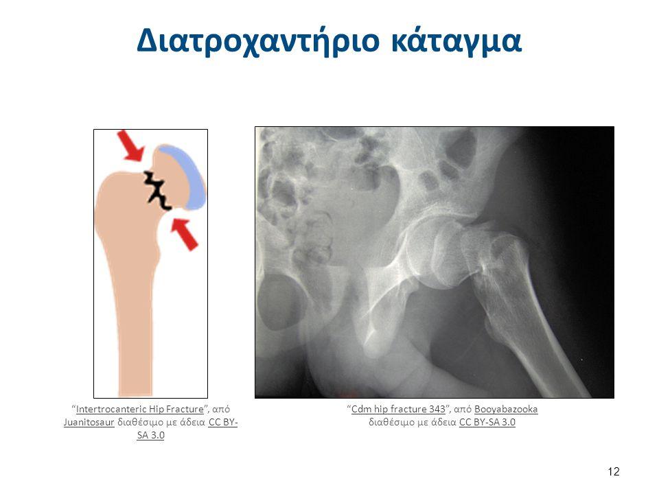 """Διατροχαντήριο κάταγμα """"Intertrocanteric Hip Fracture"""", από Juanitosaur διαθέσιμο με άδεια CC BY- SA 3.0Intertrocanteric Hip Fracture JuanitosaurCC BY"""