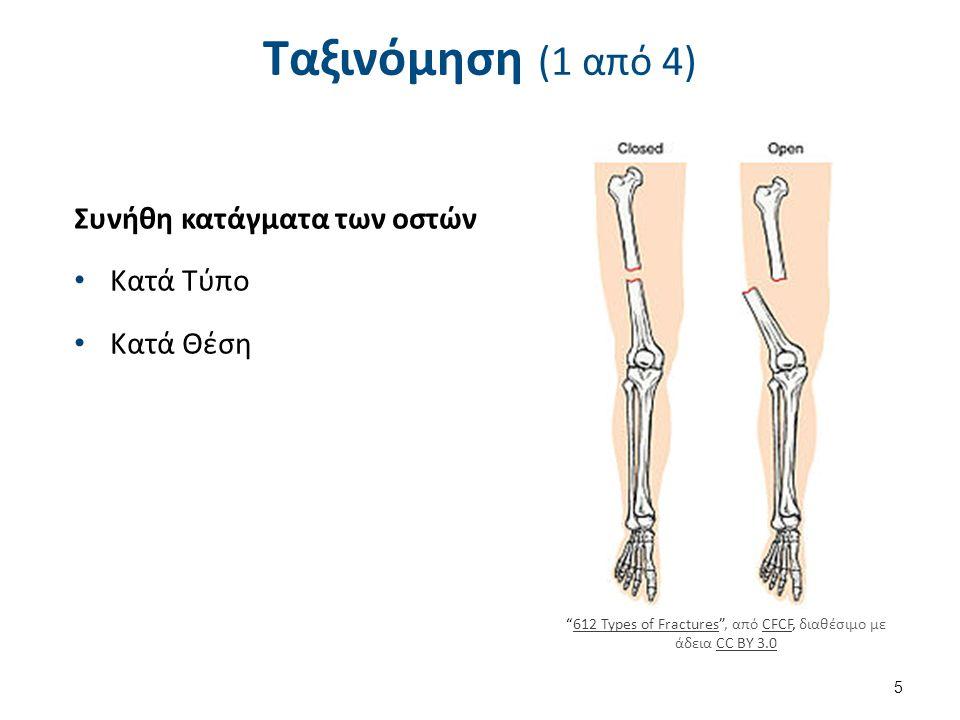 """Ταξινόμηση (1 από 4) Συνήθη κατάγματα των οστών Κατά Τύπο Κατά Θέση """"612 Types of Fractures"""", από CFCF, διαθέσιμο με άδεια CC BY 3.0612 Types of Fract"""