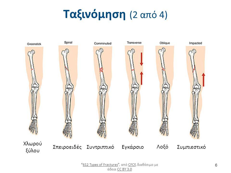 Σκελετική έλξη 27