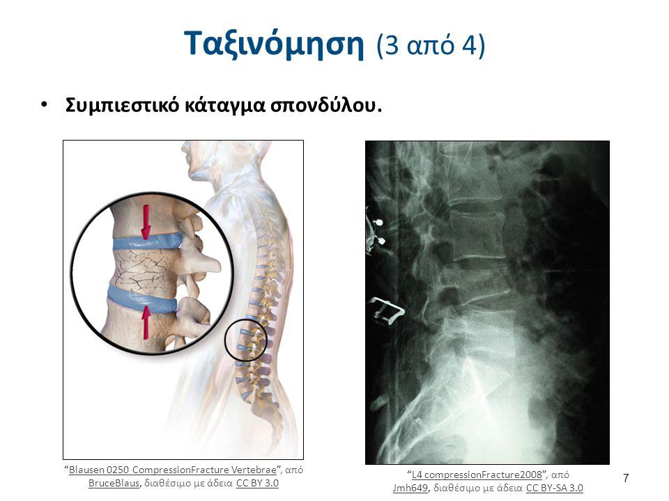 Ταξινόμηση (4 από 4) Πλήρη: αφορούν το σύνολο του πάχους των οστών, Ατελή: δεν επεκτείνονται σε όλο το πάχος του, Σταθερό (μη παρεκτοπισμένο) τα τμήματα του οστού διατηρούν την ανατομική τους ευθυγράμμιση, Ασταθές (παρεκτοπισμένο): τα τμήματα του οστού ξεφεύγουν την ανατομική τους ευθυγράμμιση.