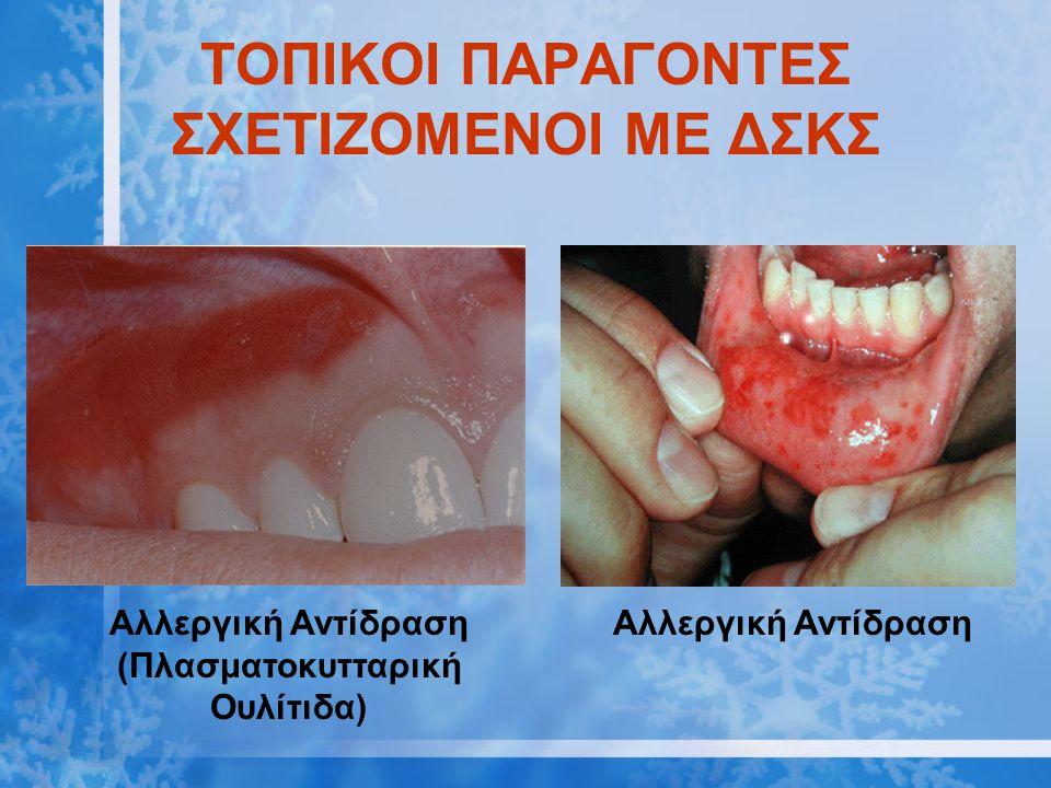 ΤΟΠΙΚΟΙ ΠΑΡΑΓΟΝΤΕΣ ΣΧΕΤΙΖΟΜΕΝΟΙ ΜΕ ΔΣΚΣ Αλλεργική Αντίδραση (Πλασματοκυτταρική Ουλίτιδα) Αλλεργική Αντίδραση