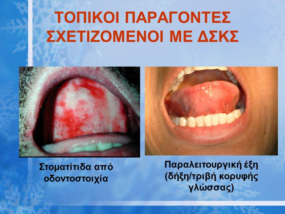 ΤΟΠΙΚΟΙ ΠΑΡΑΓΟΝΤΕΣ ΣΧΕΤΙΖΟΜΕΝΟΙ ΜΕ ΔΣΚΣ Στοματίτιδα από οδοντοστοιχία Παραλειτουργική έξη (δήξη/τριβή κορυφής γλώσσας)