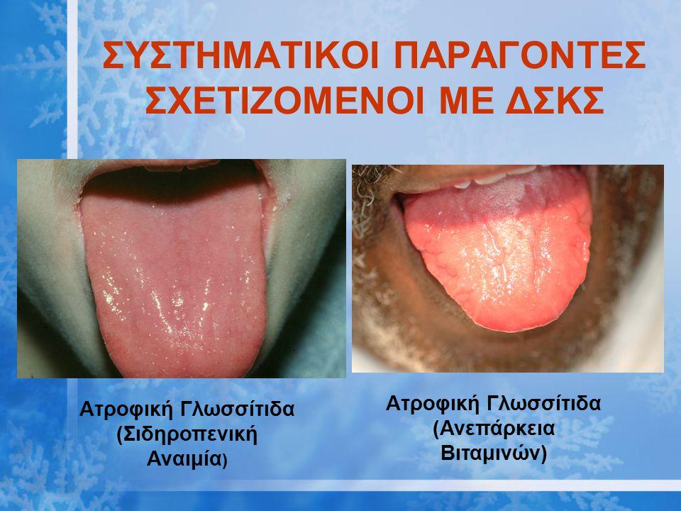 ΣΥΣΤΗΜΑΤΙΚΟΙ ΠΑΡΑΓΟΝΤΕΣ ΣΧΕΤΙΖΟΜΕΝΟΙ ΜΕ ΔΣΚΣ Ατροφική Γλωσσίτιδα (Σιδηροπενική Αναιμία ) Ατροφική Γλωσσίτιδα (Ανεπάρκεια Βιταμινών)