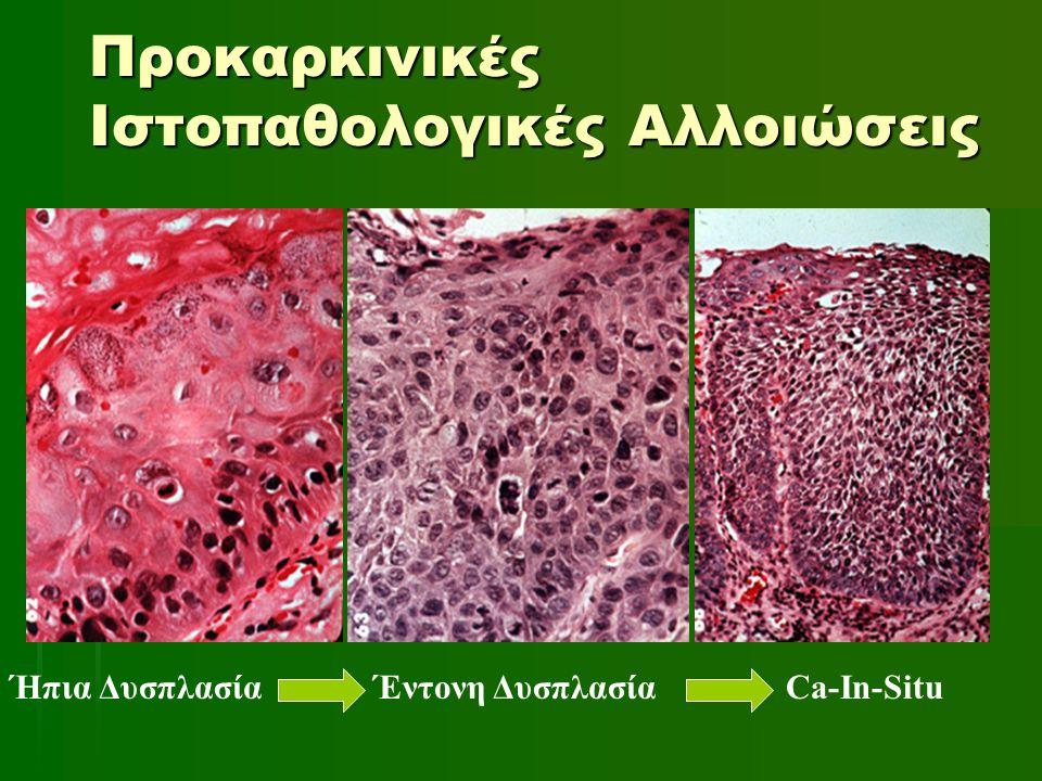 Προκαρκινικές Ιστοπαθολογικές Αλλοιώσεις Ήπια Δυσπλασία Έντονη Δυσπλασία Ca-In-Situ