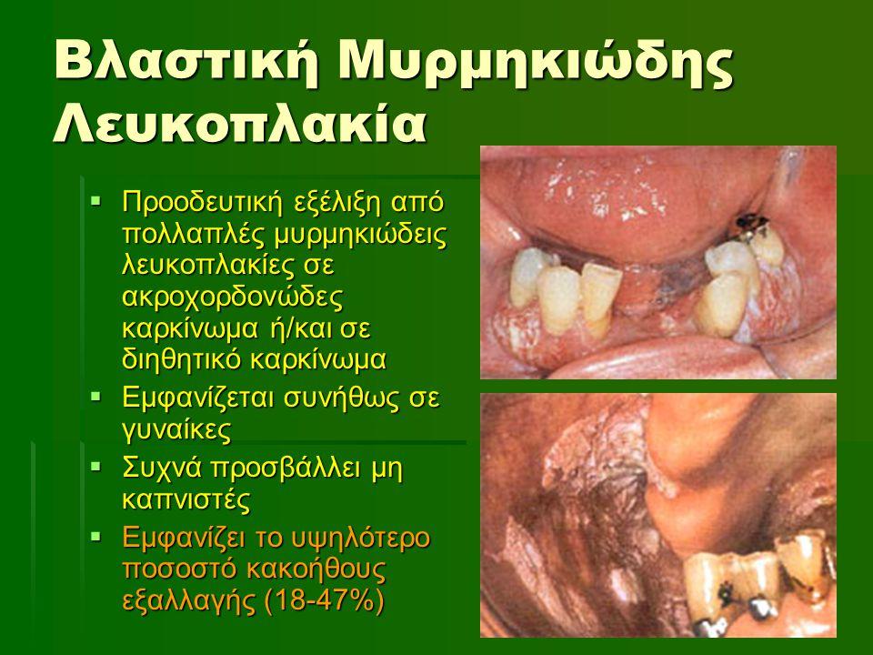Βλαστική Μυρμηκιώδης Λευκοπλακία  Προοδευτική εξέλιξη από πολλαπλές μυρμηκιώδεις λευκοπλακίες σε ακροχορδονώδες καρκίνωμα ή/και σε διηθητικό καρκίνωμ