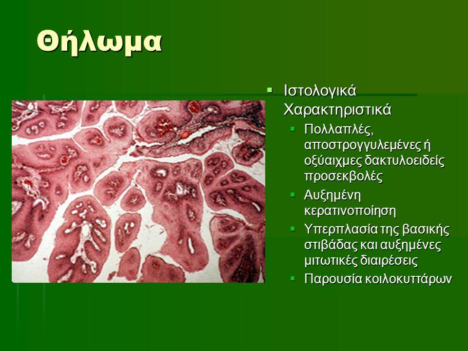 Ακτινική Χειλίτιδα  Ιστοπαθολογικά Ευρήματα  Υποεπιθηλιακή συγκέντρωση βασεόφιλου υλικού (ελαστίνη)  Ήπια χρόνια φλεγμονώδης διήθηση και τελαγγειεκτασίια  Ατροφία του επιθηλίου και άλλοτε άλλου βαθμού δυσπλασία