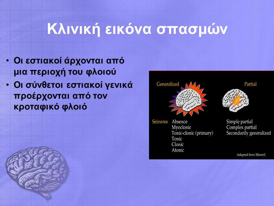 Κλινική εικόνα σπασμών Οι εστιακοί άρχονται από μια περιοχή του φλοιού Οι σύνθετοι εστιακοί γενικά προέρχονται από τον κροταφικό φλοιό