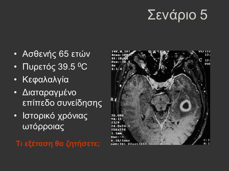Σενάριο 5 Ασθενής 65 ετών Πυρετός 39.5 0 C Κεφαλαλγία Διαταραγμένο επίπεδο συνείδησης Ιστορικό χρόνιας ωτόρροιας Τι εξέταση θα ζητήσετε;