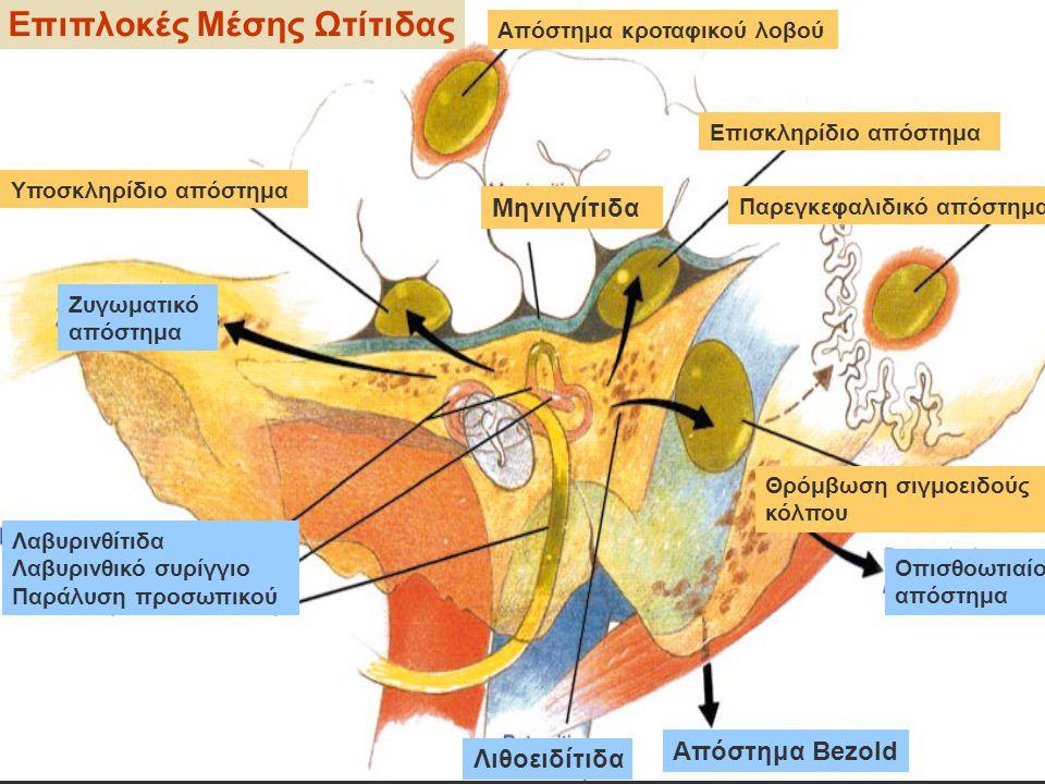 Απόστημα κροταφικού λοβού Επισκληρίδιο απόστημα Μηνιγγίτιδα Υποσκληρίδιο απόστημα Παρεγκεφαλιδικό απόστημα Θρόμβωση σιγμοειδούς κόλπου Ζυγωματικό απόσ
