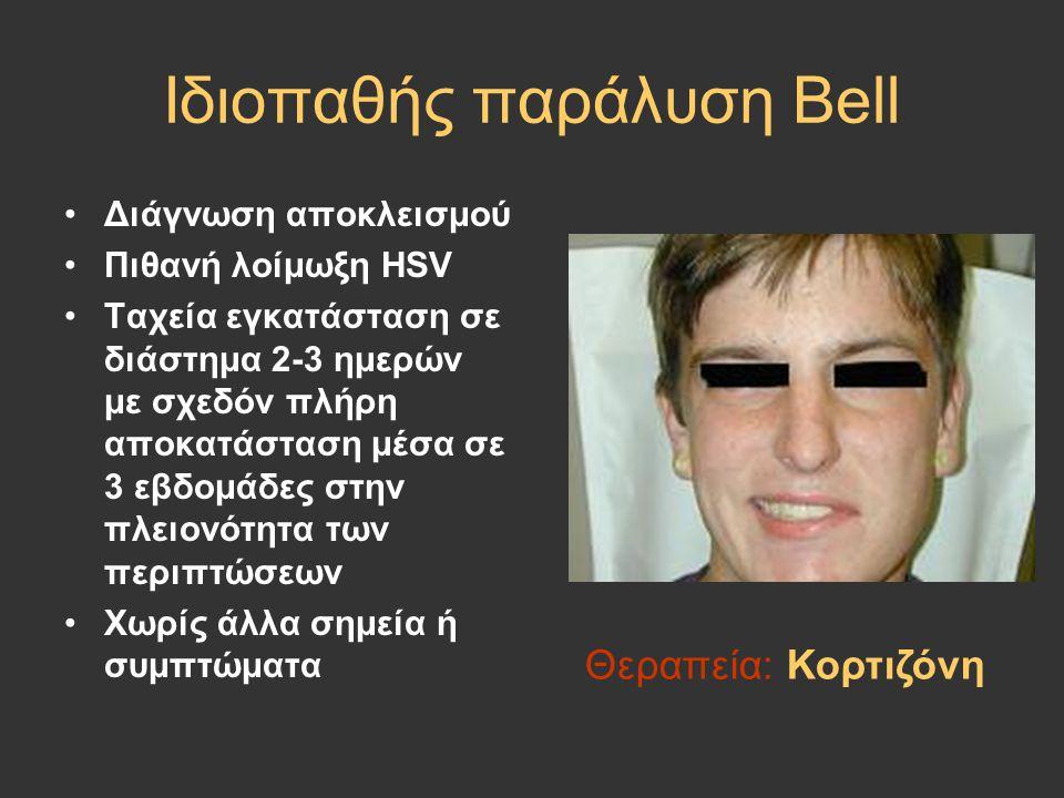 Ιδιοπαθής παράλυση Bell Διάγνωση αποκλεισμού Πιθανή λοίμωξη HSV Ταχεία εγκατάσταση σε διάστημα 2-3 ημερών με σχεδόν πλήρη αποκατάσταση μέσα σε 3 εβδομ