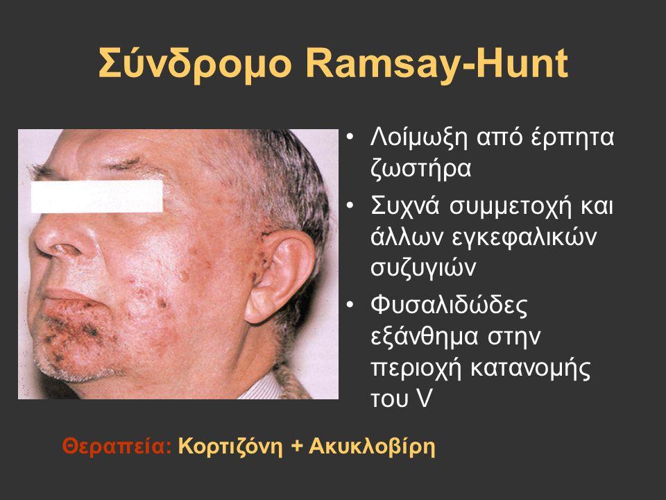 Σύνδρομο Ramsay-Hunt Λοίμωξη από έρπητα ζωστήρα Συχνά συμμετοχή και άλλων εγκεφαλικών συζυγιών Φυσαλιδώδες εξάνθημα στην περιοχή κατανομής του V Θεραπ