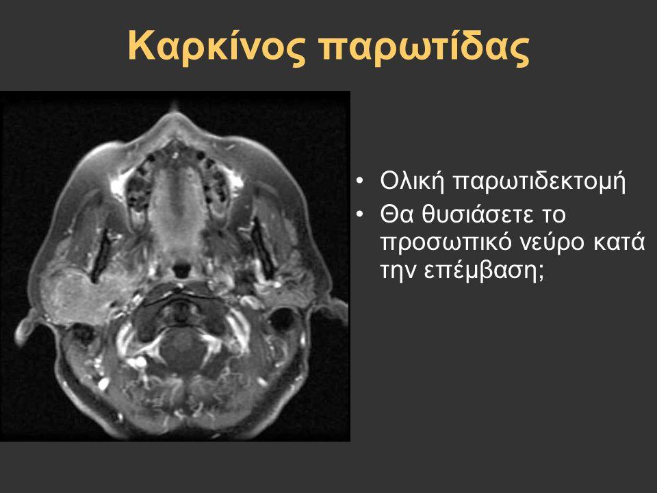 Καρκίνος παρωτίδας Ολική παρωτιδεκτομή Θα θυσιάσετε το προσωπικό νεύρο κατά την επέμβαση;