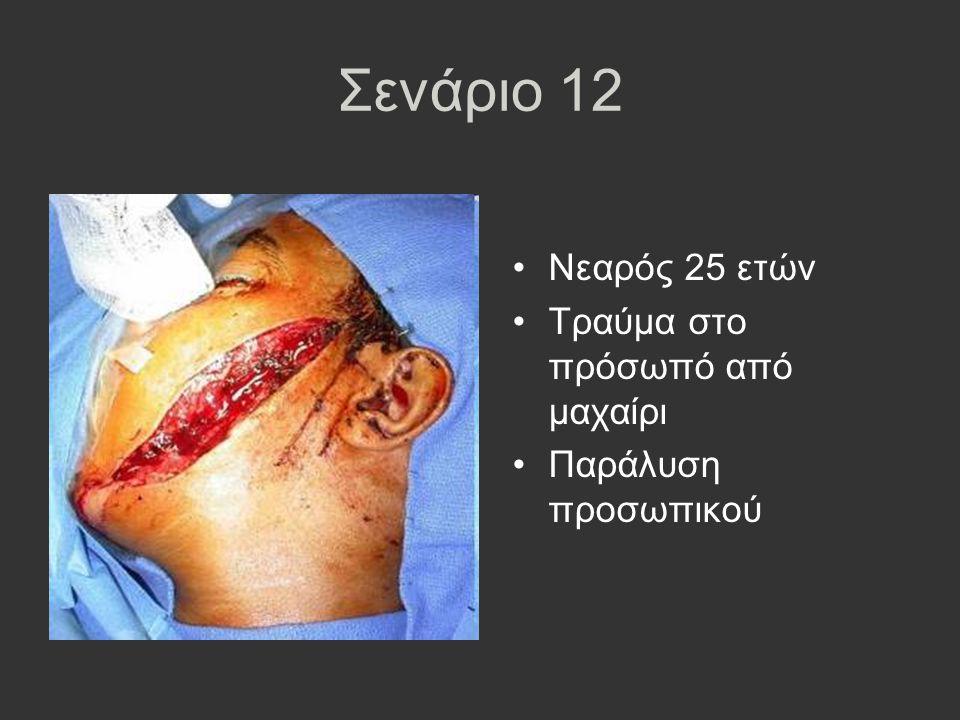 Σενάριο 12 Νεαρός 25 ετών Τραύμα στο πρόσωπό από μαχαίρι Παράλυση προσωπικού
