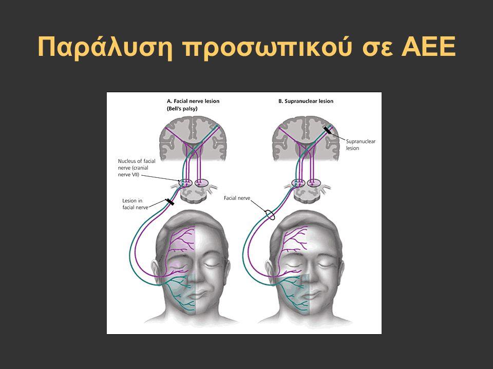 Παράλυση προσωπικού σε ΑΕΕ