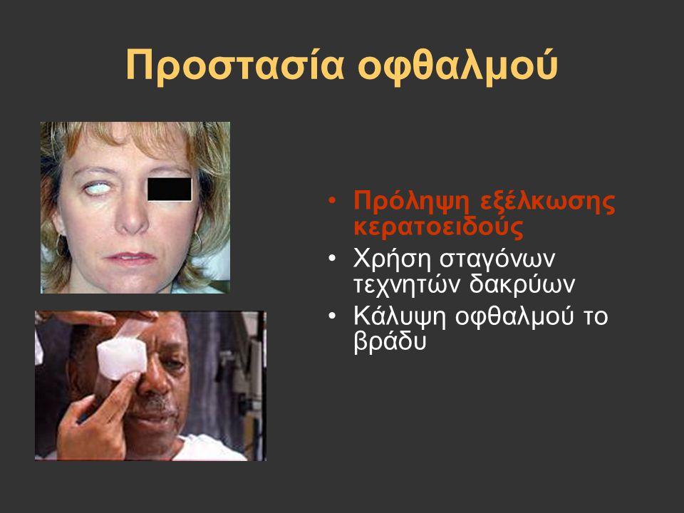 Προστασία οφθαλμού Πρόληψη εξέλκωσης κερατοειδούς Χρήση σταγόνων τεχνητών δακρύων Κάλυψη οφθαλμού το βράδυ