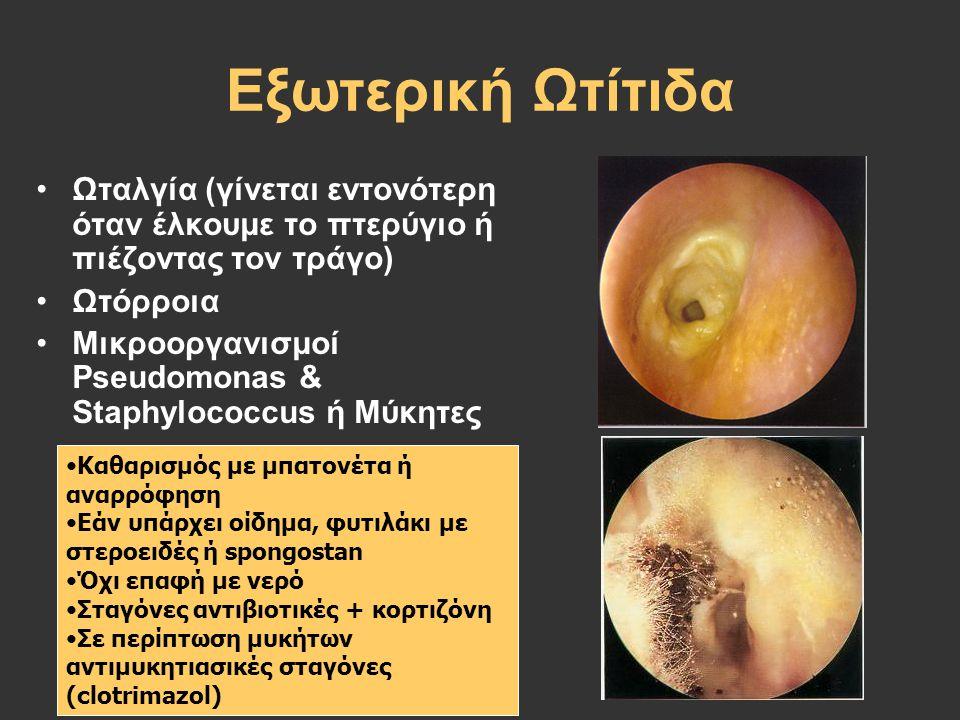 Εξωτερική Ωτίτιδα Ωταλγία (γίνεται εντονότερη όταν έλκουμε το πτερύγιο ή πιέζοντας τον τράγο) Ωτόρροια Μικροοργανισμοί Pseudomonas & Staphylococcus ή