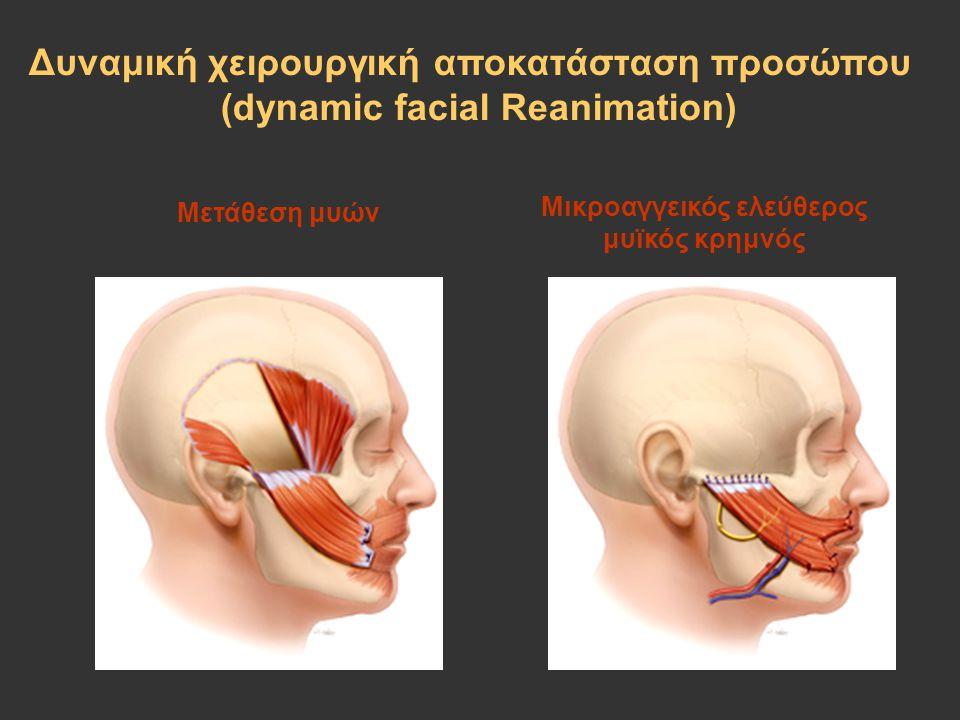 Δυναμική χειρουργική αποκατάσταση προσώπου (dynamic facial Reanimation) Μετάθεση μυών Μικροαγγεικός ελεύθερος μυϊκός κρημνός