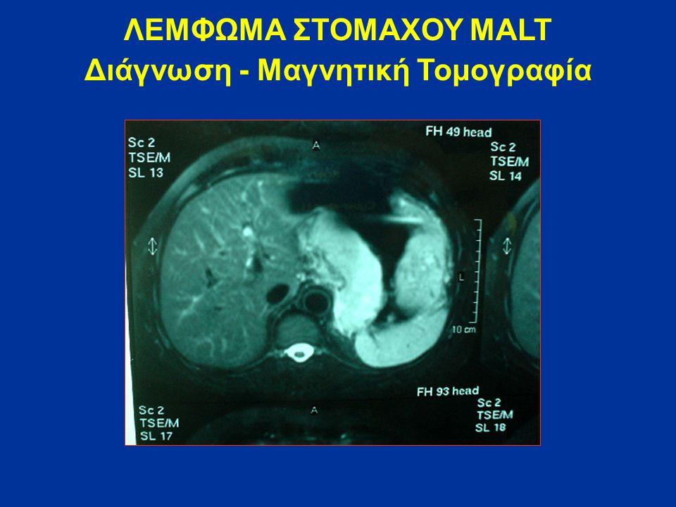 ΛΕΜΦΩΜΑ ΣΤΟΜΑΧΟΥ MALT Διάγνωση - Μαγνητική Τομογραφία