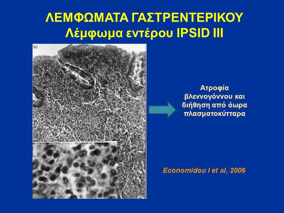 ΛΕΜΦΩΜΑΤΑ ΓΑΣΤΡΕΝΤΕΡΙΚΟΥ Λέμφωμα εντέρου IPSID ΙΙΙ Economidou I et al, 2006 Ατροφία βλεννογόννου και διήθηση από άωρα πλασματοκύτταρα