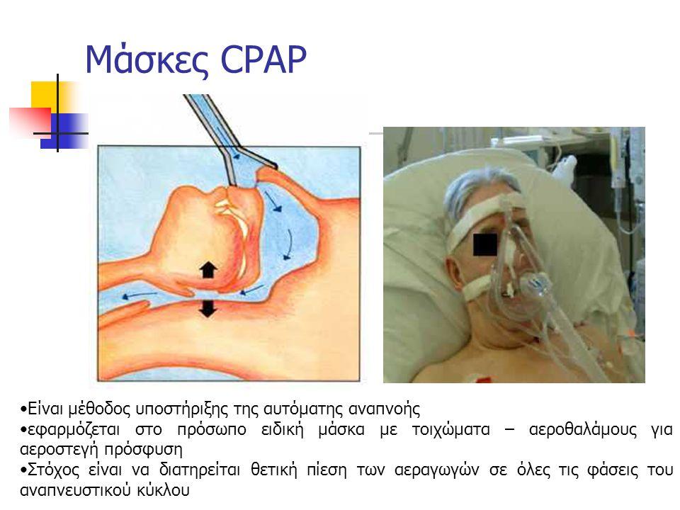 Μάσκες CPAP Είναι μέθοδος υποστήριξης της αυτόματης αναπνοής εφαρμόζεται στο πρόσωπο ειδική μάσκα με τοιχώματα – αεροθαλάμους για αεροστεγή πρόσφυση Στόχος είναι να διατηρείται θετική πίεση των αεραγωγών σε όλες τις φάσεις του αναπνευστικού κύκλου