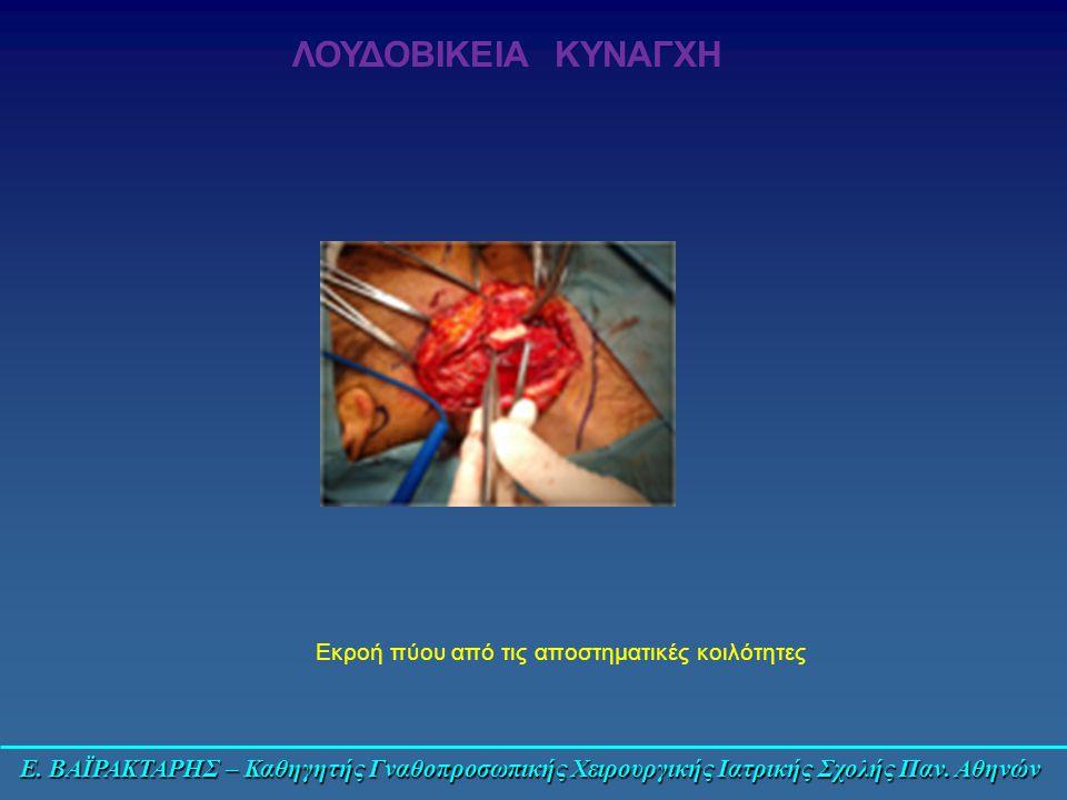 Ε. ΒΑΪΡΑΚΤΑΡΗΣ – Καθηγητής Γναθοπροσωπικής Χειρουργικής Ιατρικής Σχολής Παν. Αθηνών ΛΟΥΔΟΒΙΚΕΙΑ ΚΥΝΑΓΧΗ Εκροή πύου από τις αποστηματικές κοιλότητες