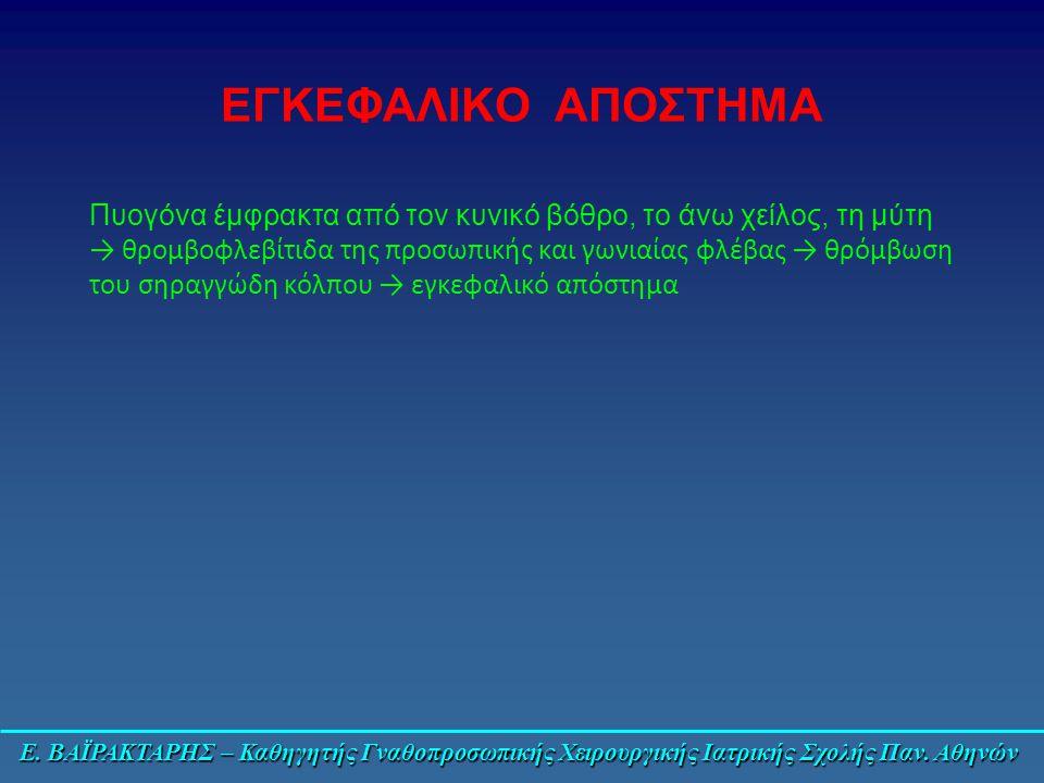 Ε. ΒΑΪΡΑΚΤΑΡΗΣ – Καθηγητής Γναθοπροσωπικής Χειρουργικής Ιατρικής Σχολής Παν. Αθηνών ΕΓΚΕΦΑΛΙΚΟ ΑΠΟΣΤΗΜΑ Πυογόνα έμφρακτα από τον κυνικό βόθρο, το άνω