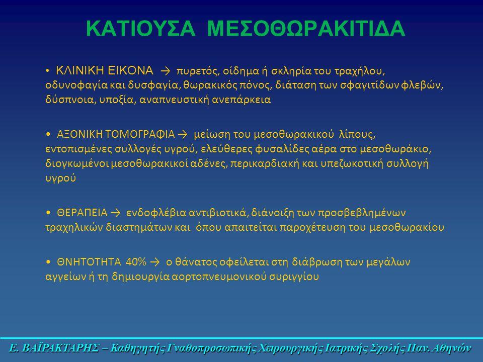 Ε. ΒΑΪΡΑΚΤΑΡΗΣ – Καθηγητής Γναθοπροσωπικής Χειρουργικής Ιατρικής Σχολής Παν. Αθηνών ΚΑΤΙΟΥΣΑ ΜΕΣΟΘΩΡΑΚΙΤΙΔΑ ΚΛΙΝΙΚΗ ΕΙΚΟΝΑ → πυρετός, οίδημα ή σκληρία