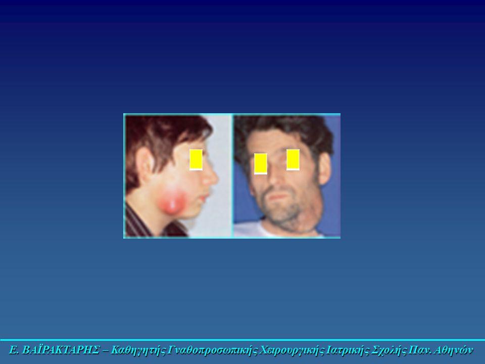 Ε. ΒΑΪΡΑΚΤΑΡΗΣ – Καθηγητής Γναθοπροσωπικής Χειρουργικής Ιατρικής Σχολής Παν. Αθηνών