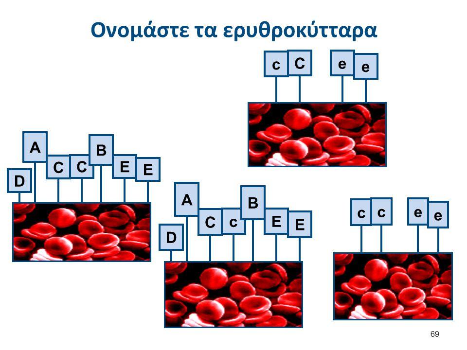 Σήμανση Ασκών κατά ABO, Rhesus 1.Πρώτα το σύστημα ΑΒΟ. 2.Μετά το σύστημα Rhesus (στη μέση αναγράφεται το D). 3.Ακολουθεί το Kell. Παράδειγμα: ΑΒ CcDee