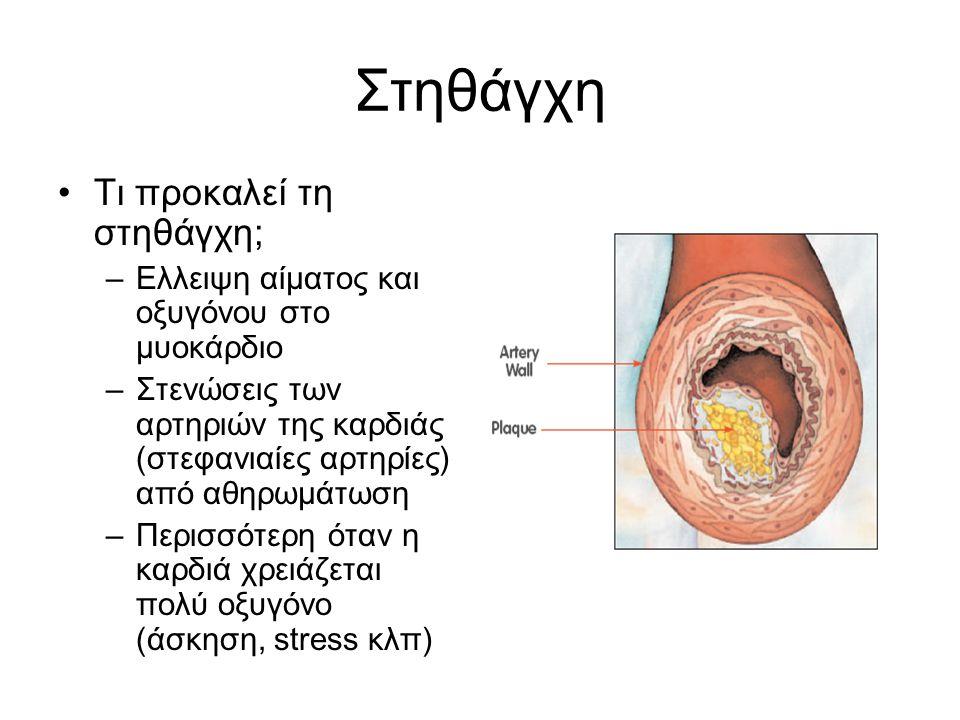 Στηθάγχη Τι προκαλεί τη στηθάγχη; –Ελλειψη αίματος και οξυγόνου στο μυοκάρδιο –Στενώσεις των αρτηριών της καρδιάς (στεφανιαίες αρτηρίες) από αθηρωμάτω