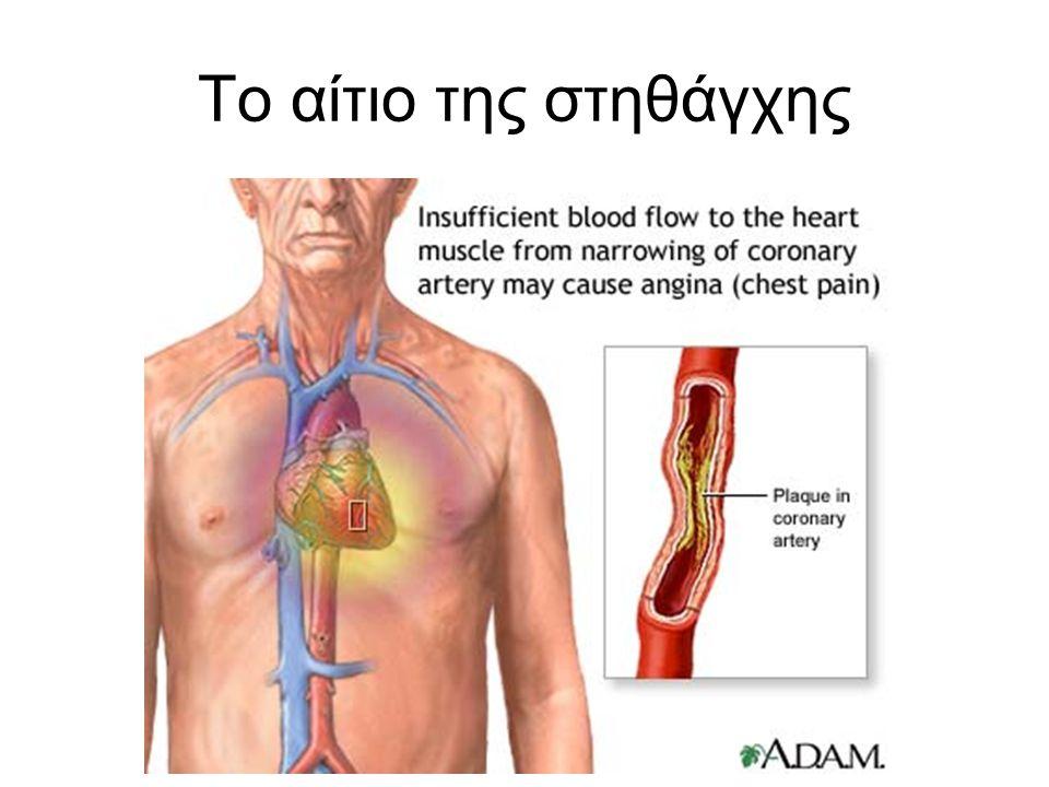 Θεραπεία στηθάγχης Φάρμακα από το στόμα –Νιτρώδη Αγγειοδιασταλτικά των στεφανιαίων, ανακουφίζουν τη στηθάγχη –Β-αναστολείς Μειώνουν την πίεση και τους σφυγμούς και η καρδιά δεν χρειάζεται πολύ οξυγόνο –Αναστολείς ασβεστίου Μειώνουν τον σπασμό των αρτηριών και την πίεση.