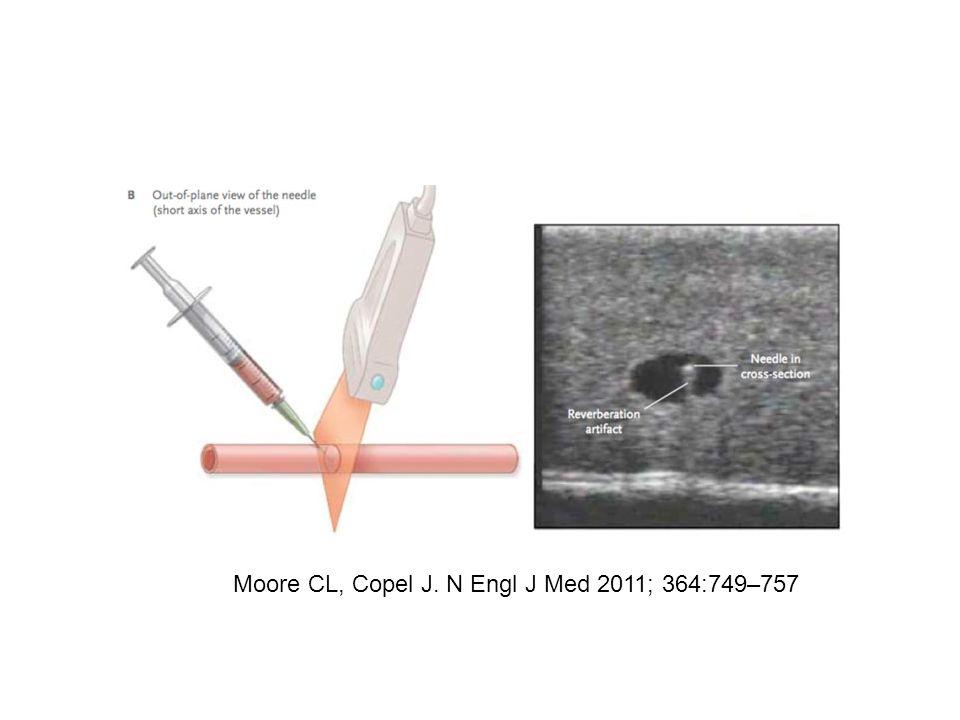 Moore CL, Copel J. N Engl J Med 2011; 364:749–757