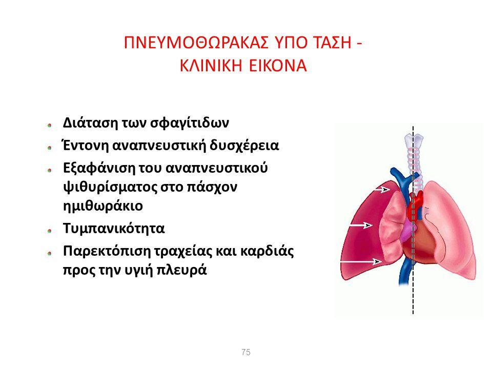 75 ΠΝΕΥΜΟΘΩΡΑΚΑΣ ΥΠΟ ΤΑΣΗ - ΚΛΙΝΙΚΗ ΕΙΚΟΝΑ Διάταση των σφαγίτιδων Έντονη αναπνευστική δυσχέρεια Εξαφάνιση του αναπνευστικού ψιθυρίσματος στο πάσχον ημ