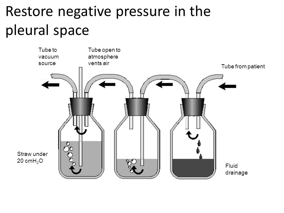 Restore negative pressure in the pleural space 2cm fluid water sealCollection bottleSuction control Tube from patient Fluid drainage Tube open to atmosphere vents air Straw under 20 cmH 2 O Tube to vacuum source