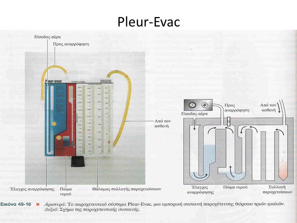 88 Pleur-Evac 88